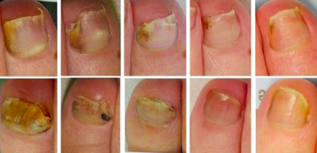 Fungal Nail Infections – Wicklow Podiatry